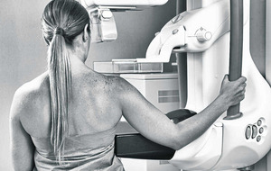 First Person: Chance mammogram decision saved my life