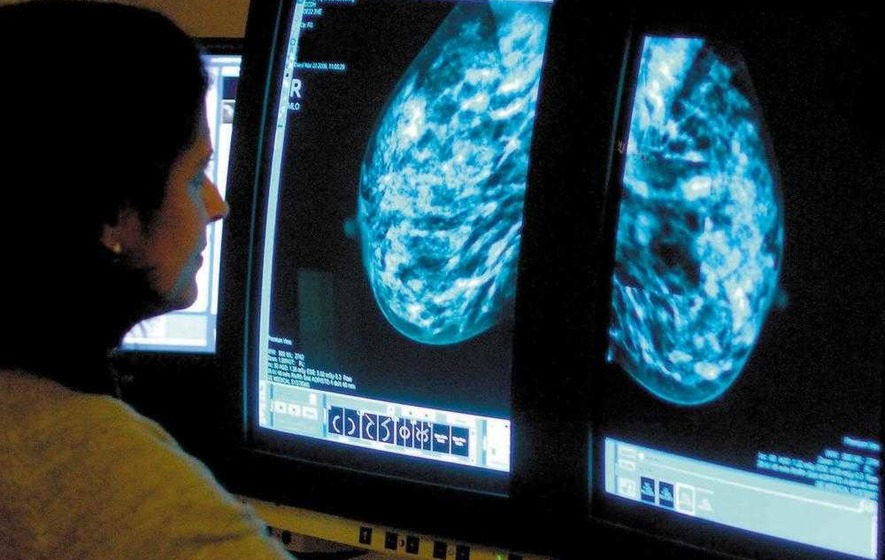 NI trust worst in NHS for breaching breast cancer targets