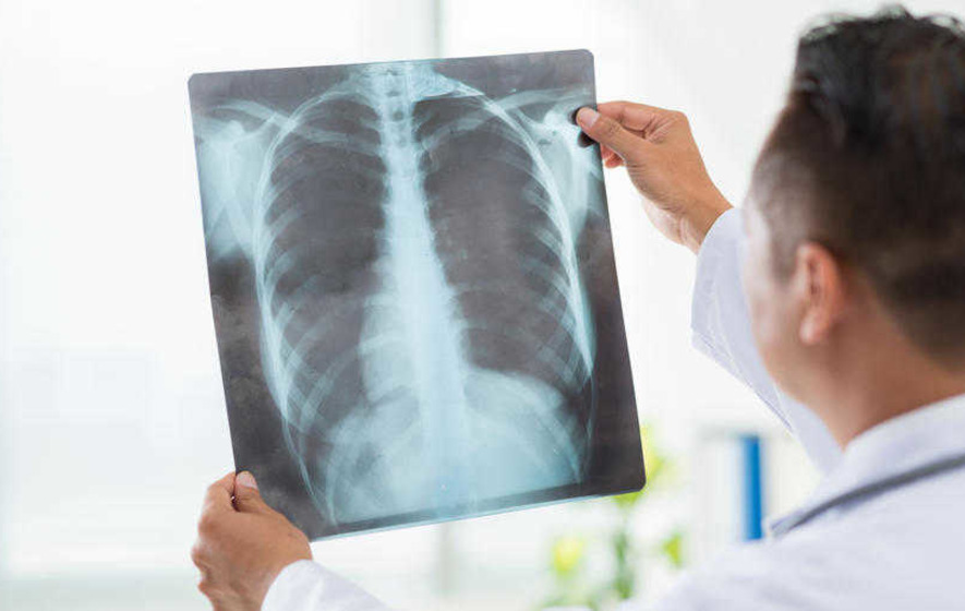 Pneumonia is far more common than people think says expert