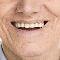 Ask the Dentist: Tooth care is important for cancer patients