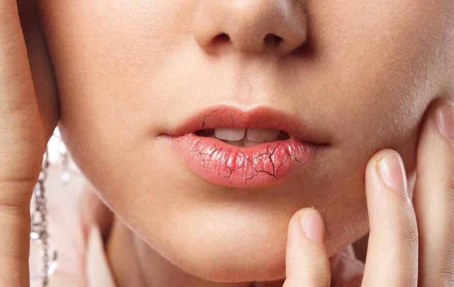 Store lips