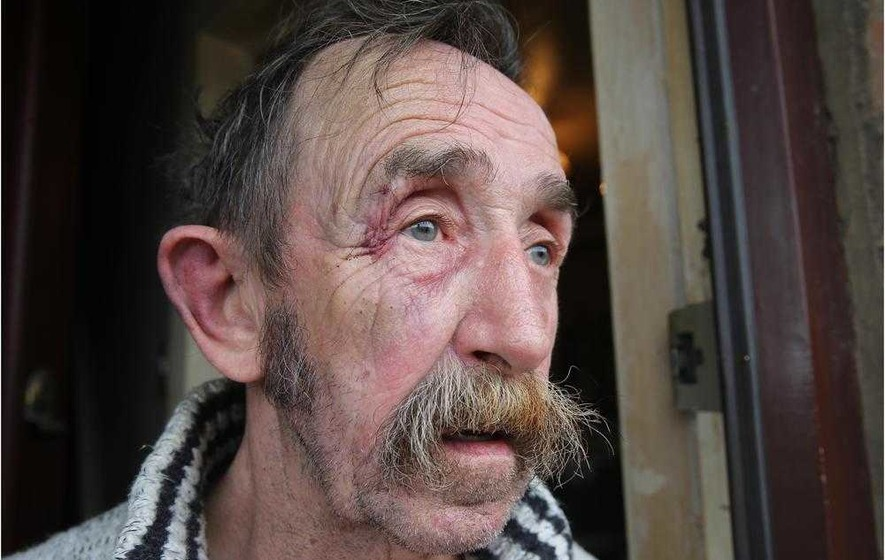 Brave Ardoyne pensioner tried to fight off robber