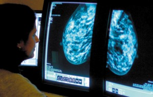 Experts hopeful rates of some cancers have peaked or are falling