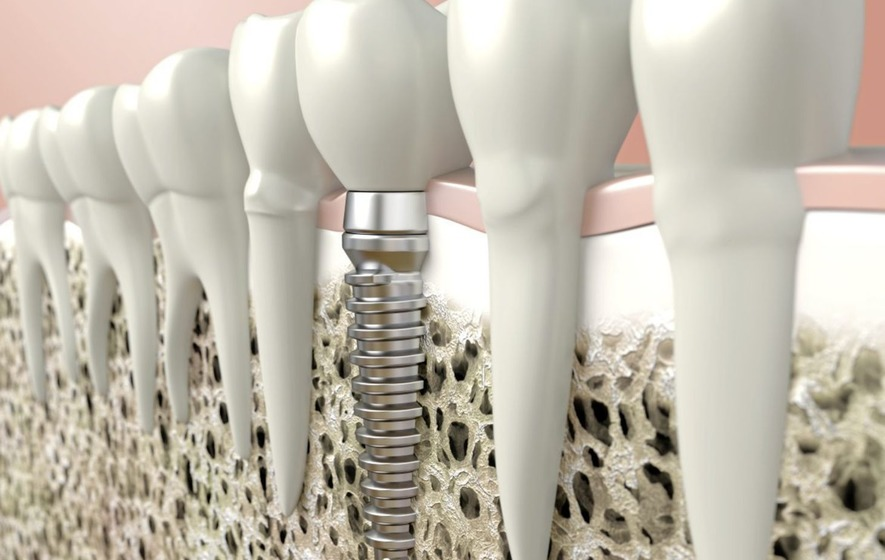 Ask the Dentist: What's the story with dental implants?