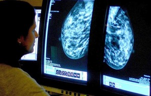 Cancer treatment waiting time targets missed again
