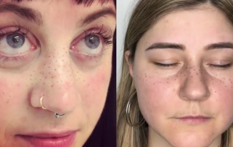 The Rundown on Semi-Permanent Microbladed Freckle Tattoos ...