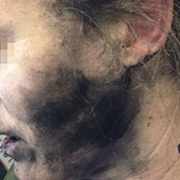 This airline passenger was left with burns after her headphones exploded