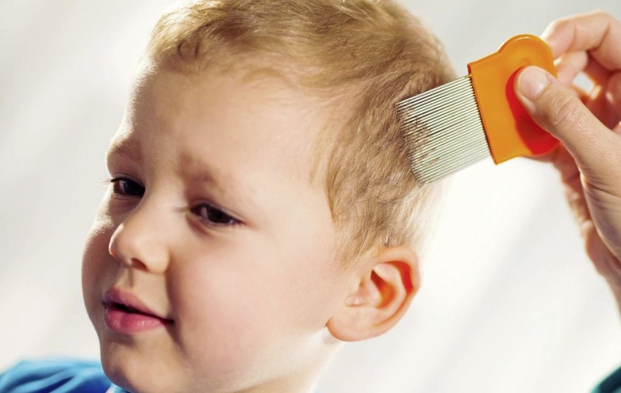 how to find head lice on child