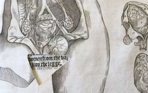 This 16th century anatomy book shows what we may have thought about female genitalia