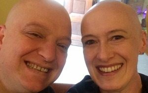 This inspiring cancer patient takes selfies with strangers to tackle the taboo of being a bald woman