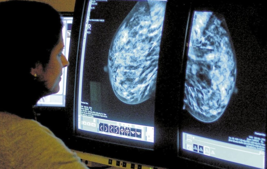 Cancer services failing some patients as targets missed again, charity warns