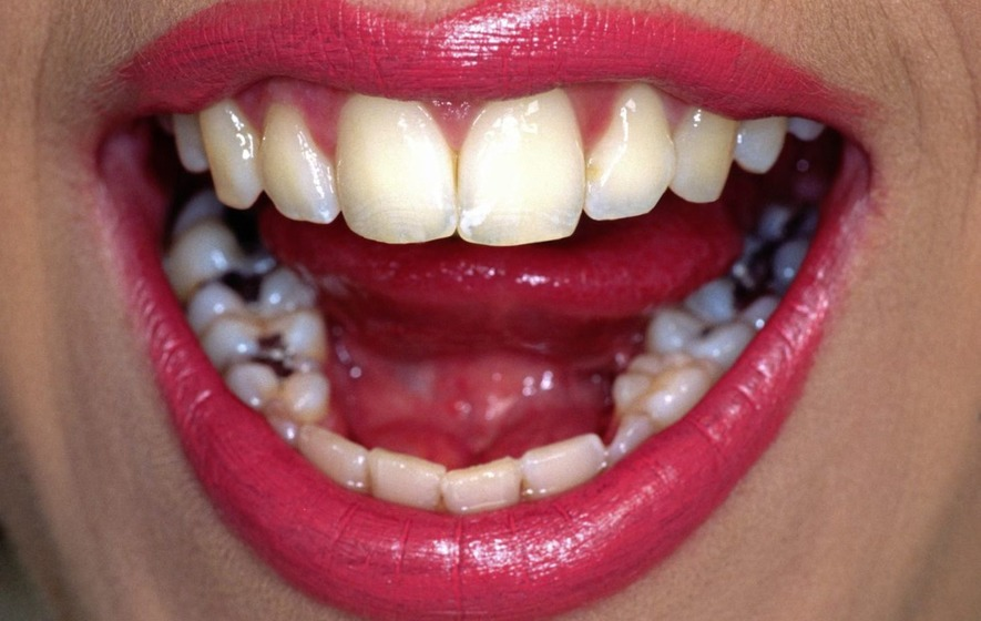 Ask The Dentist: EU law aims to phase out mercury fillings