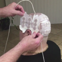 Is this headwear the answer to fighting brain cancer?