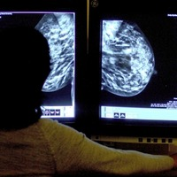 New hope for those with breast cancer