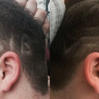 This young Lib Dem supporter got the party's name shaved on the side of his head
