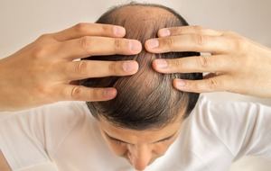 The treatment for baldness could lie within immune cells that control inflammation