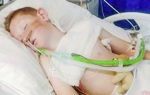 Schoolboy Cameron Dickson now stable after bonfire chemical incident