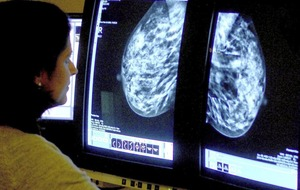 RQIA report: woman at risk of developing breast cancer while on plastic surgery waiting lists