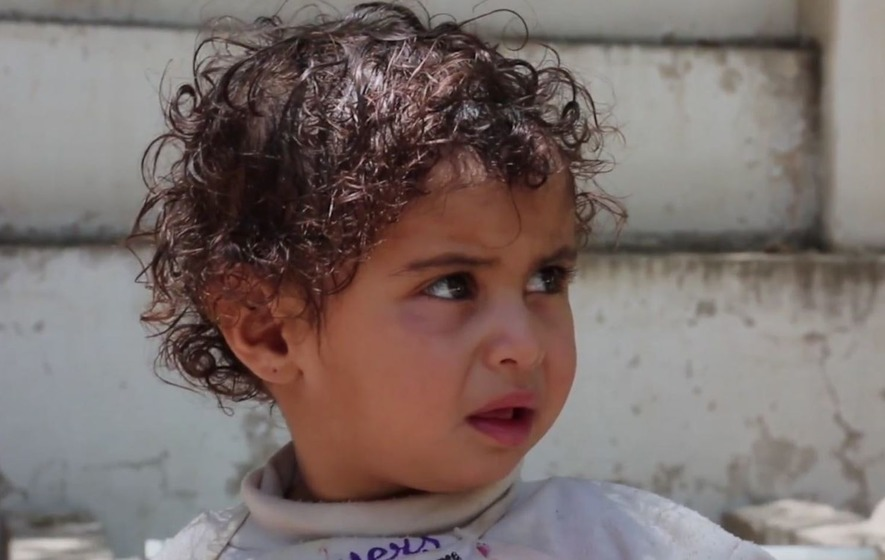 One-year-old Zuhoor had her fingers amputated after she was injured in an air strike in Yemen
