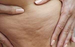 Beauty: We ask an expert which cellulite cures really work