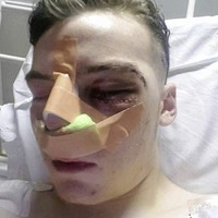 Teenager (16) assaulted at Belfast concert has permanent metal plates inserted in his face