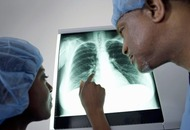 Cases of lung cancer in women increase by more than 50 per cent in last decade