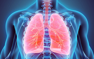 People in Northern Ireland more likely to have incurable lung condition than anywhere else in the UK