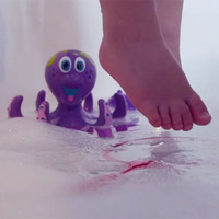 'Scarred for Life' video launched to prevent child burns at home