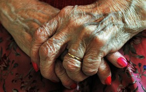Drug used to treat hand osteoarthritis no better than placebo, study finds