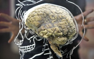 Human brain size evolved gradually over three million years, researchers say