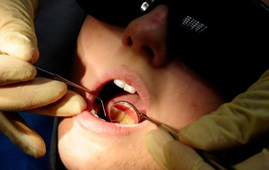 Drinking fruit tea between meals increases chance of tooth erosion