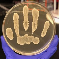 Scientists have found a cancer-fighting chemical in human skin bacteria