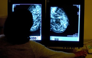 Double mastectomy increases survival chances of women with breast cancer gene