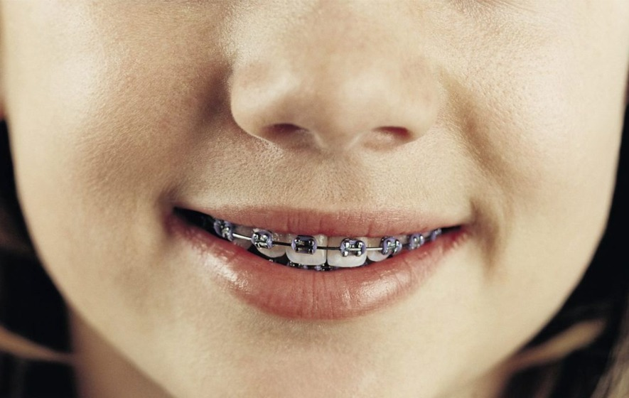 7f85883f9 Braces can help to improve the position of teeth and positively enhance the  growth of the facial bones