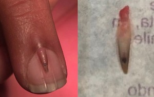This man had an extra nail growing out of his middle finger