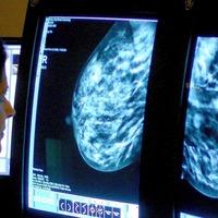 'Mythical' cancer beliefs revealed
