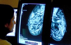 'Mythical' cancer beliefs revealed
