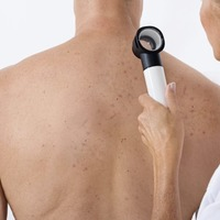 Seven subtle skin cancer warning signs that you need to know about