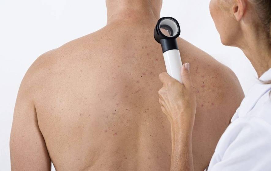 Seven Subtle Skin Cancer Warning Signs That You Need To Know About The Irish News