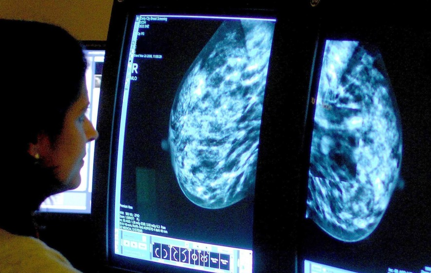 Experimental treatment could be breast cancer breakthrough