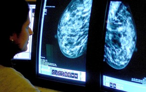 Breast cancer patients 'denied reconstructive surgery due to NHS restrictions'