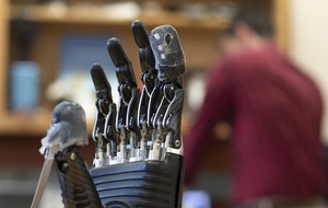 Synthetic skin enables prosthetic hand user to feel pain