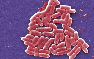 Bacterial 'armour' could provide a target for new antibiotic drugs