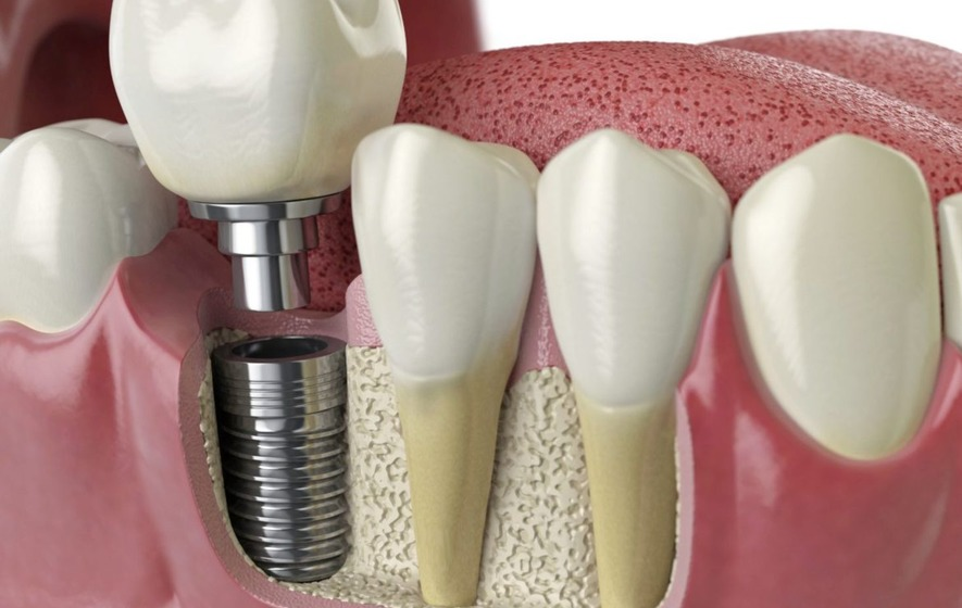 Everything to Know About Dental Implants