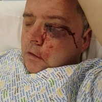 Celtic fan from Derry blinded in one eye in assault after Old Firm game