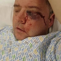 Derry man blinded in attack after Old Firm game to be special guest of Celtic