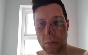 Edendork player cleared over collision which left Sean Cavanagh injured