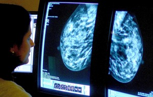 UK breast cancer deaths to rise by 2022, report warns