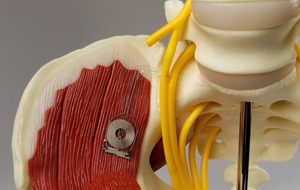 Implantable device speeds up nerve repair