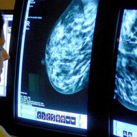 Women given false positive result 'twice as likely to develop breast cancer'